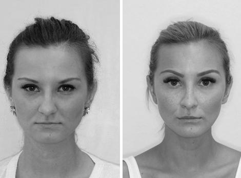 Chirurgická úprava profilu obličeje
